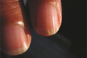 Трескаются ногти