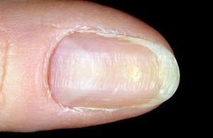 Как избавиться от грибка на ногтях без таблеток