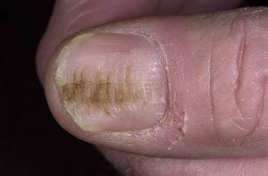 Волнистые ногти на руках причины