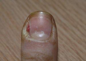 Как и чем можно вылечить грибок ногтей на пальцах ног