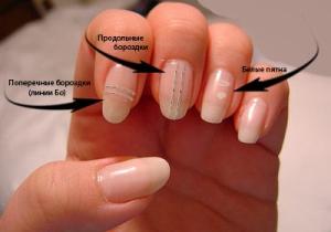 Как лечить ушиб ногтя