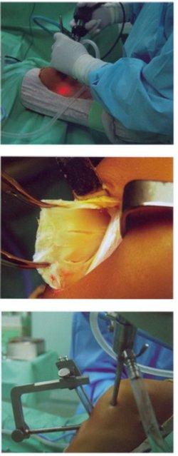Изображение - Пластика пкс коленного сустава отзывы 3