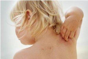 Травы для ребенка до года от аллергии