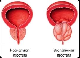 Признаки гнойного простатита у мужчин простатит у мужчин симптомы