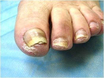 Дрожжевой грибок на пальцах рук как лечить