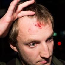 Охранник Киркорова разбил журналисту голову