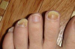 Воняют ногти на ногах почему