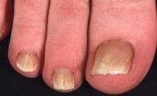 Лучший препарат грибок на ногтях ног